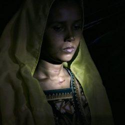 مركز الملك سلمان يبحث سبل دعم الروهنغيا في بنغلادش
