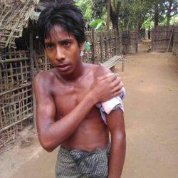 """الإعصار """"بلبل"""" يمر بسلام على لاجئي الروهنغيا في بنغلادش"""