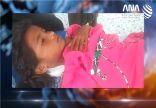 مصرع طفلين وإصابة آخر من الروهنغيا في انفجار لغم أرضي بولاية أراكان